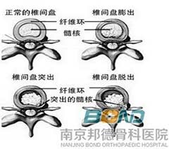 腰椎间盘膨出疗法_腰椎间盘膨出的治疗方法有哪些?